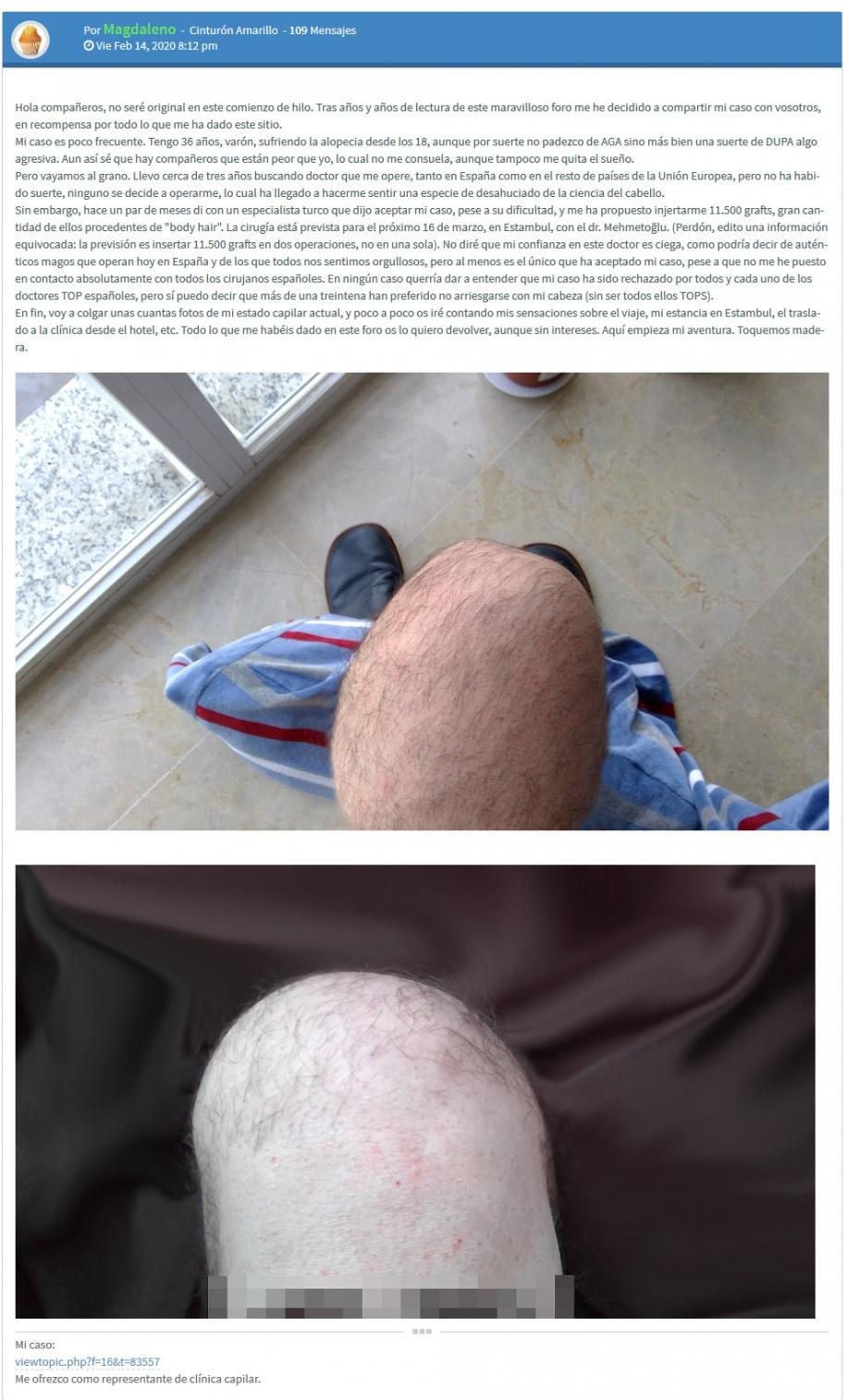 Engaña a un foro de alopecia con fotos de su rodilla